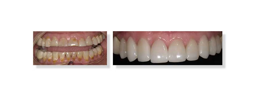 Patient Case: How we transformed a woman's smile